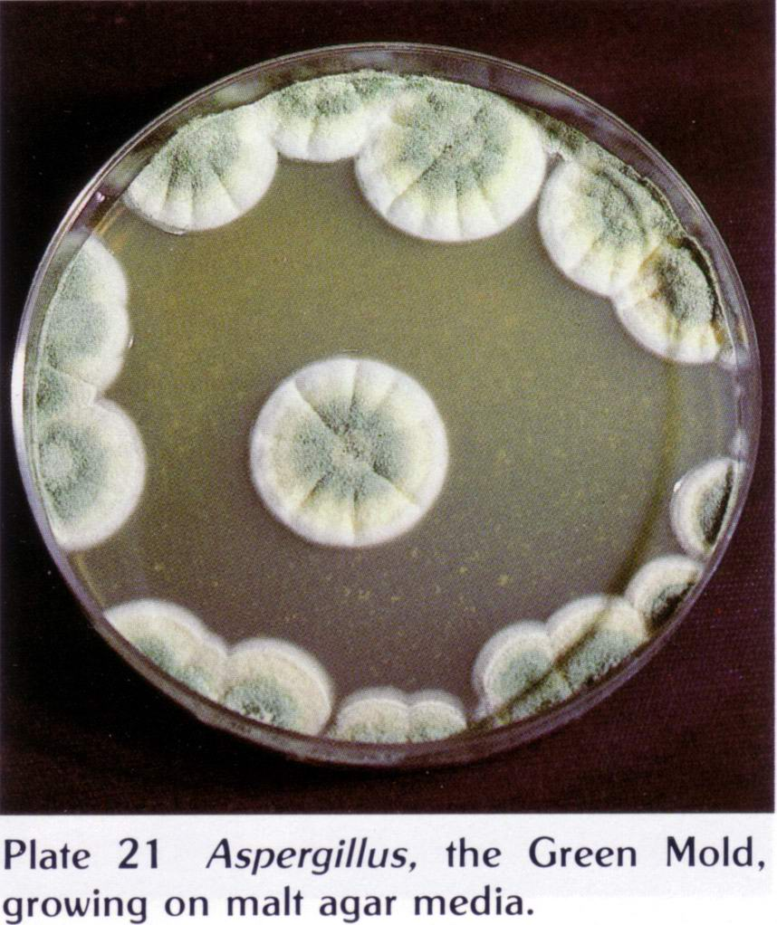 what are common contaminants of the mushroom culture